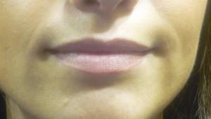 Copia (2) de labios antes