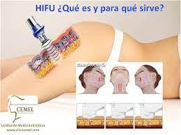 hifu20