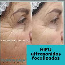 hifu8
